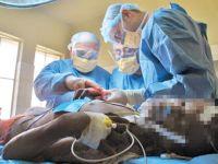 جراحی ترمیمی سوختگی در ایران رایگان شد