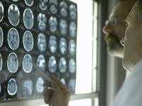 ضربه مغزی خفیف را میتوان با یک آزمایش خون ساده تشخیص داد